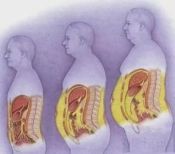 内脏脂肪对比.jpg